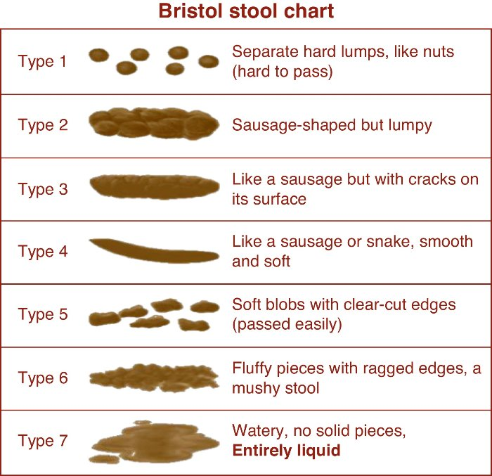 Bristol-stool-chart1