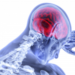 Could Your Fatigue Be Caused By Mast Cell Activation Syndrome?